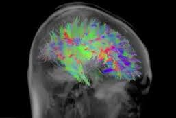 brain map 1