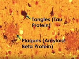 Alzheimer plaque